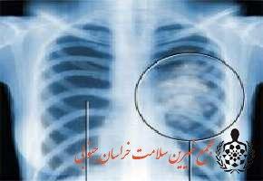 سرطان ریه کشنده ترین سرطان در جهان