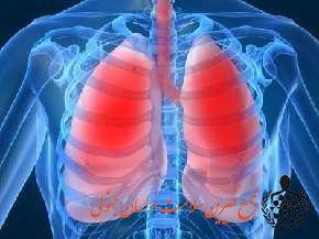 علل و راه های پیشگیری از ابتلا به سرطان ریه